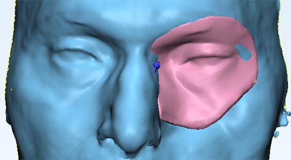 Maxillofacial Prosthesis